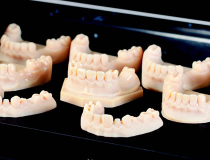 Rochester Dentists Among the First To Use 3-D Printing for Cosmetic Dental Needs